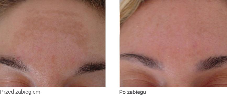 Redukcja przebarwień na twarzy