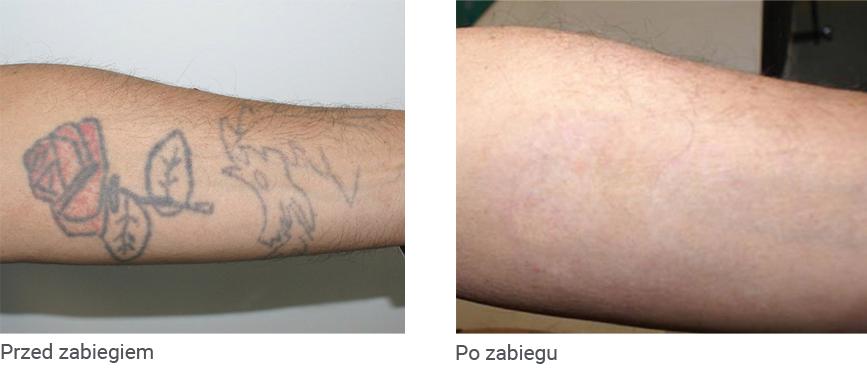 Likwidacja tatuażu